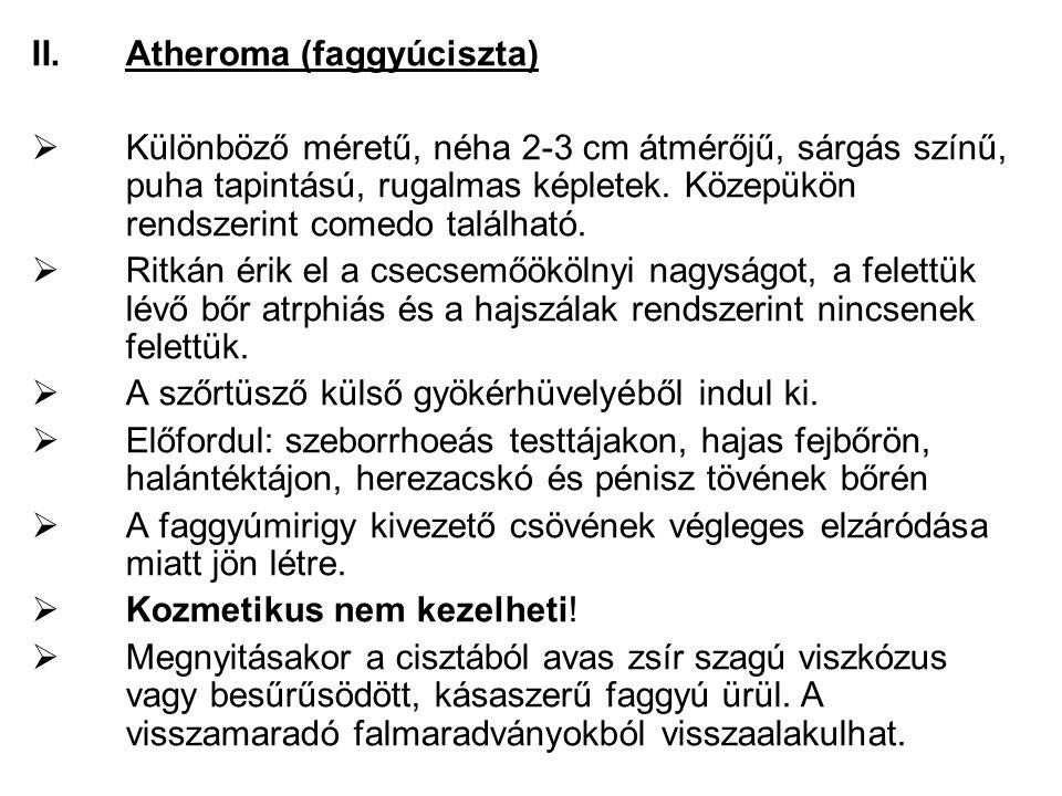 Atheroma (faggyúciszta)