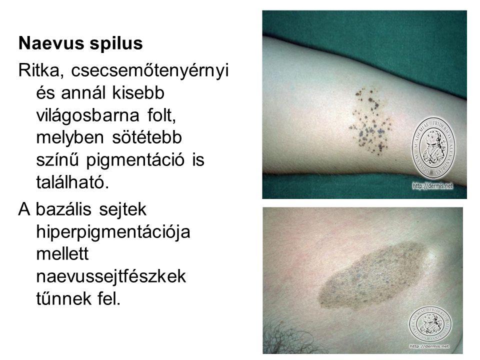 Naevus spilus Ritka, csecsemőtenyérnyi és annál kisebb világosbarna folt, melyben sötétebb színű pigmentáció is található.