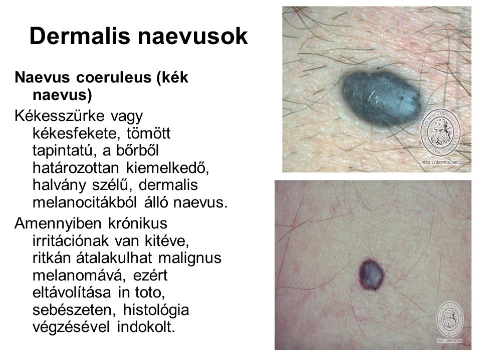 Dermalis naevusok Naevus coeruleus (kék naevus)