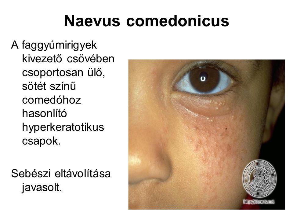 Naevus comedonicus A faggyúmirigyek kivezető csövében csoportosan ülő, sötét színű comedóhoz hasonlító hyperkeratotikus csapok.