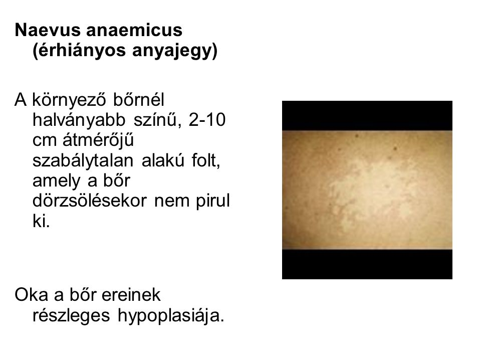 Naevus anaemicus (érhiányos anyajegy)
