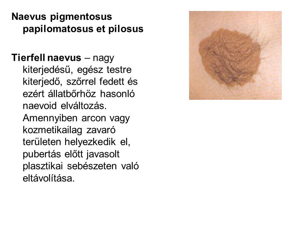 Naevus pigmentosus papilomatosus et pilosus