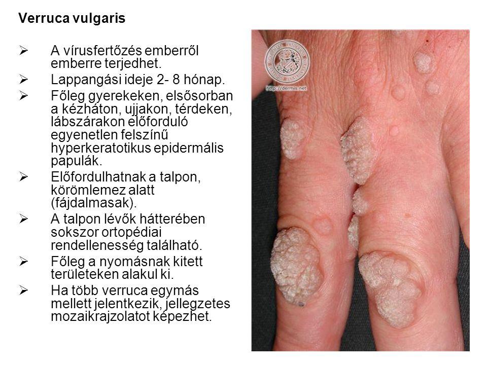 Verruca vulgaris A vírusfertőzés emberről emberre terjedhet. Lappangási ideje 2- 8 hónap.