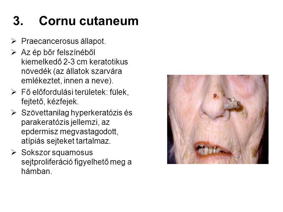Cornu cutaneum Praecancerosus állapot.