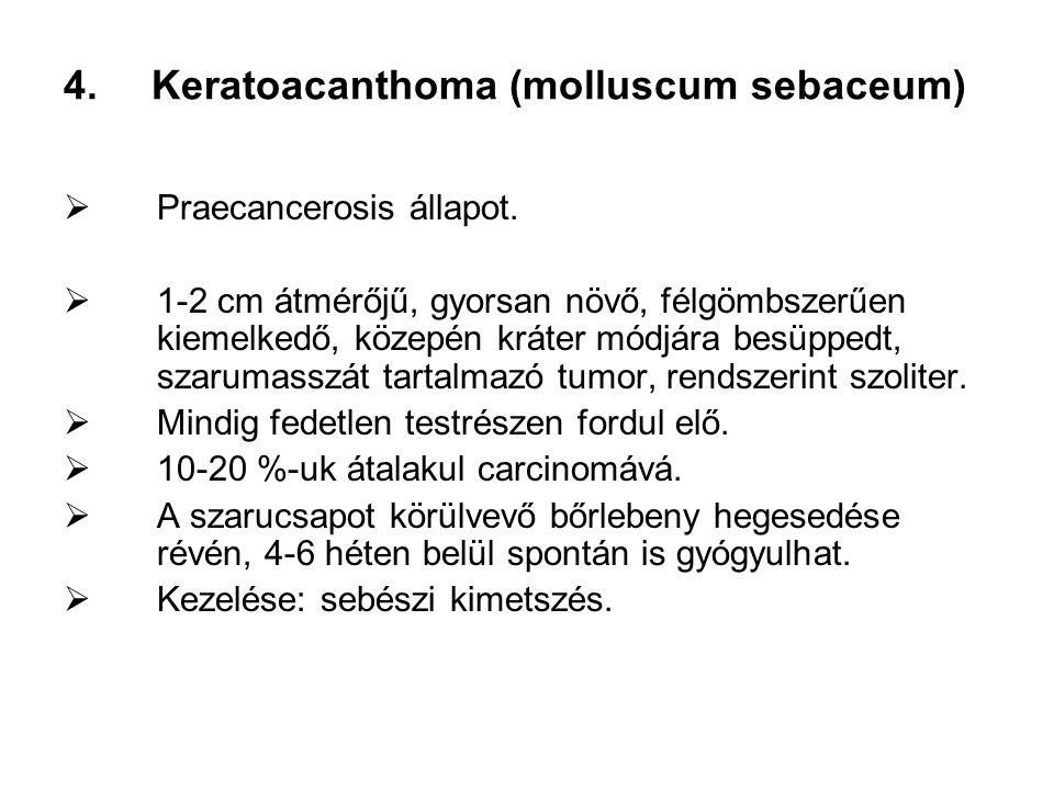 Keratoacanthoma (molluscum sebaceum)