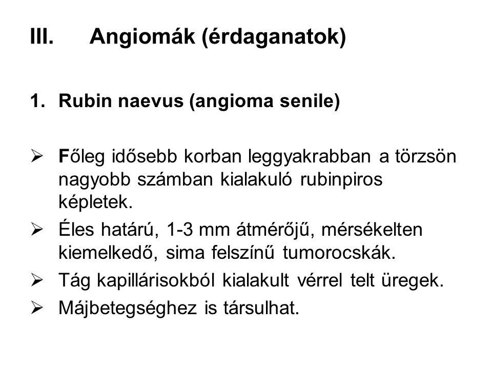 Angiomák (érdaganatok)
