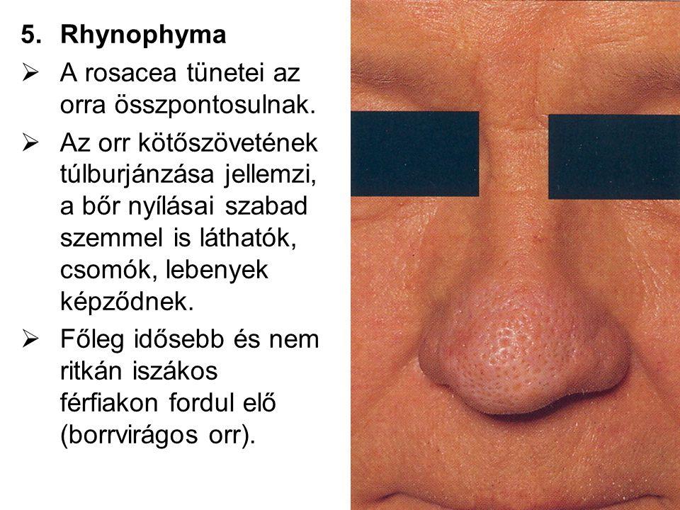 Rhynophyma A rosacea tünetei az orra összpontosulnak.