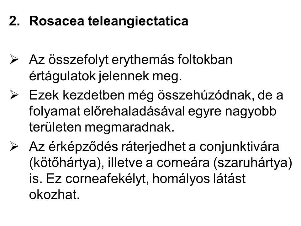 Rosacea teleangiectatica