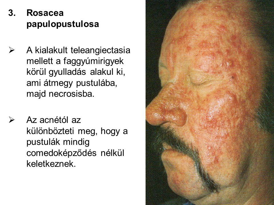 Rosacea papulopustulosa
