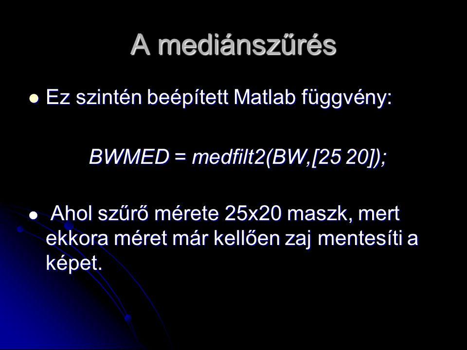 A mediánszűrés Ez szintén beépített Matlab függvény: