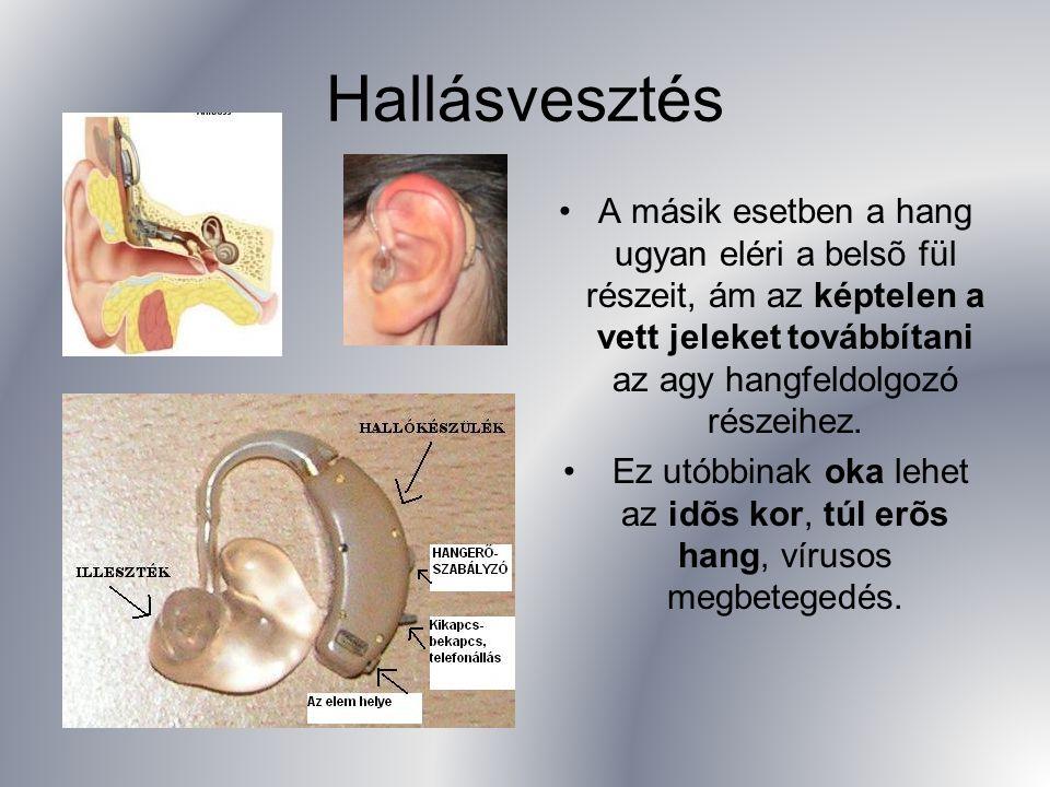 Hallásvesztés A másik esetben a hang ugyan eléri a belsõ fül részeit, ám az képtelen a vett jeleket továbbítani az agy hangfeldolgozó részeihez.