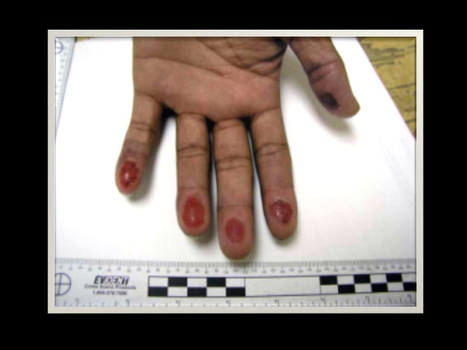 Ugyanakkor az elfogott cigányok tömegesen vágták le az ujjaikat, ujjperceiket, ill.