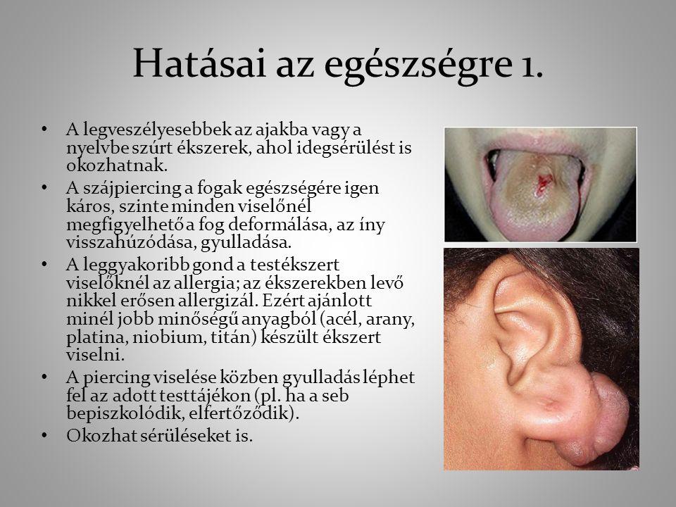 Hatásai az egészségre 1. A legveszélyesebbek az ajakba vagy a nyelvbe szúrt ékszerek, ahol idegsérülést is okozhatnak.