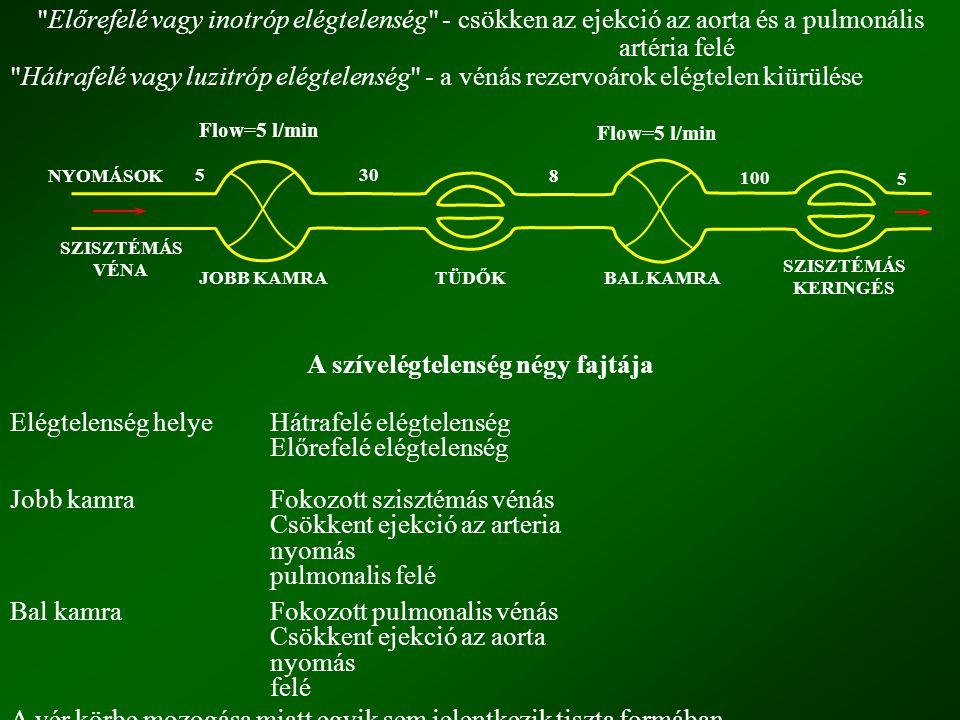 A szívelégtelenség négy fajtája