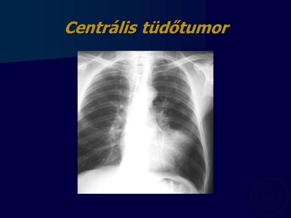 Centrális tüdőtumor