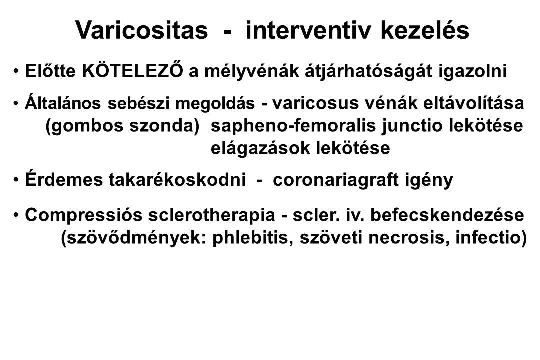 Varicositas - interventiv kezelés