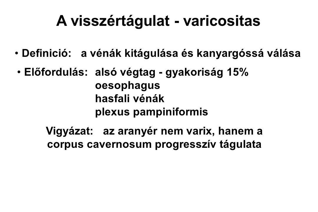 A visszértágulat - varicositas