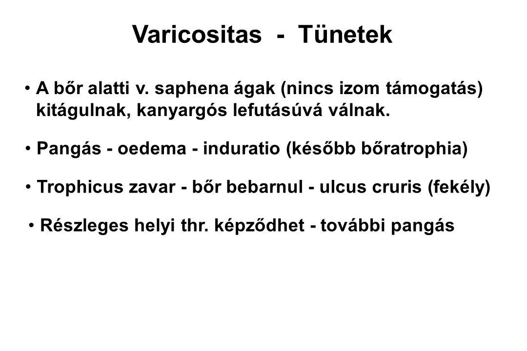 Varicositas - Tünetek A bőr alatti v. saphena ágak (nincs izom támogatás) kitágulnak, kanyargós lefutásúvá válnak.