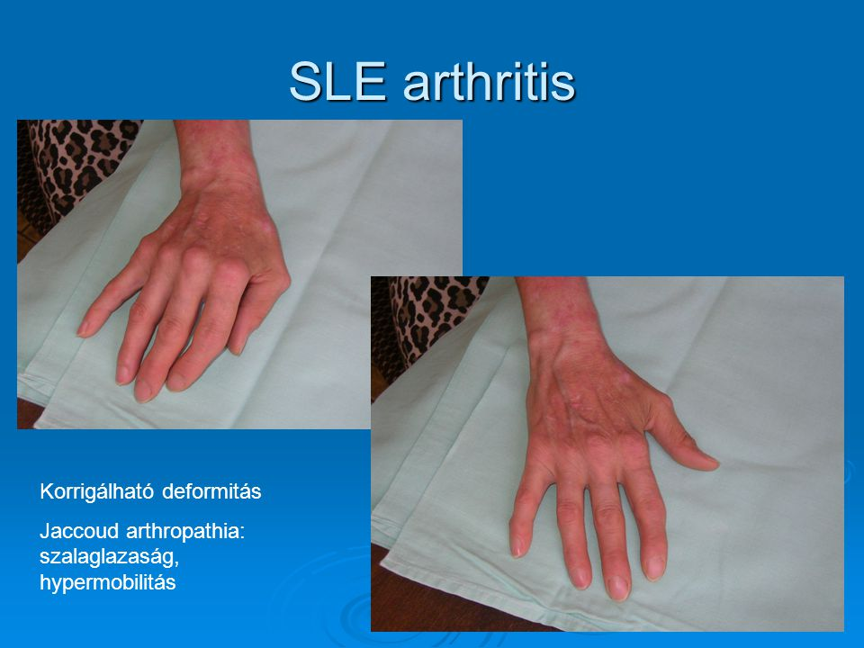 SLE arthritis Korrigálható deformitás
