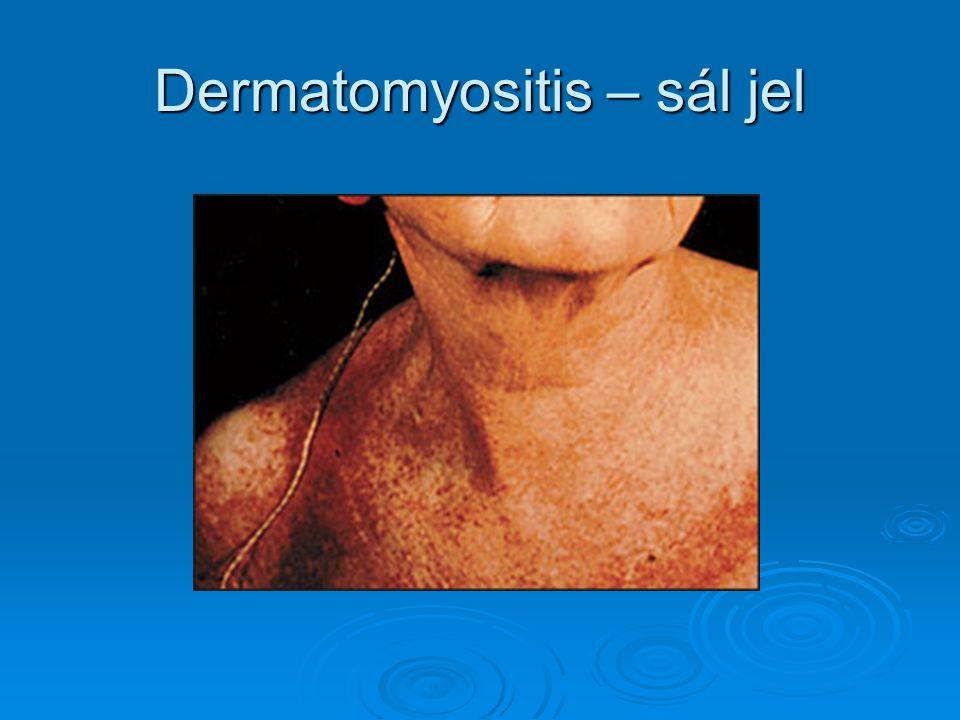 Dermatomyositis – sál jel