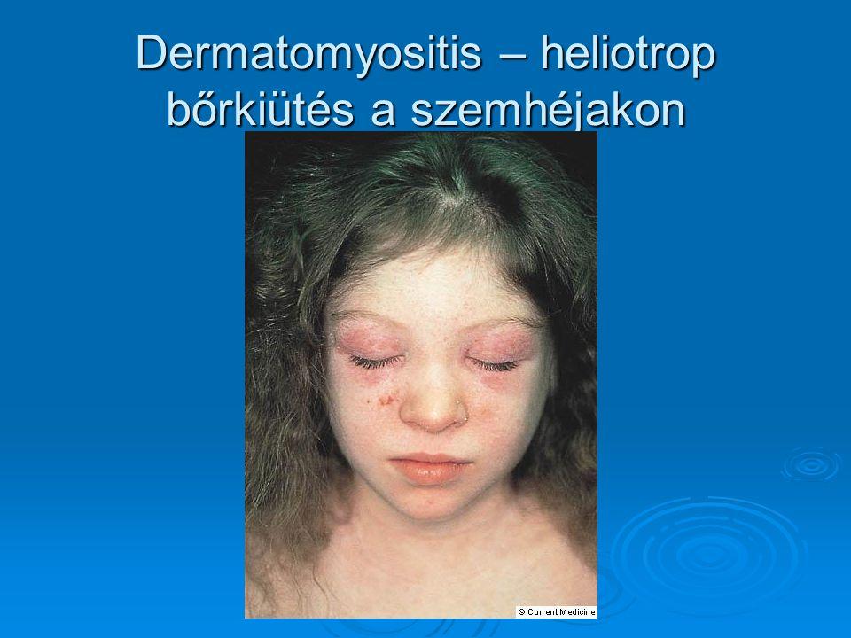 Dermatomyositis – heliotrop bőrkiütés a szemhéjakon