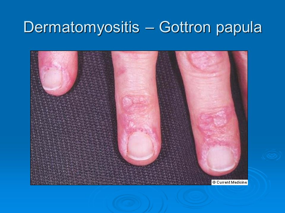 Dermatomyositis – Gottron papula