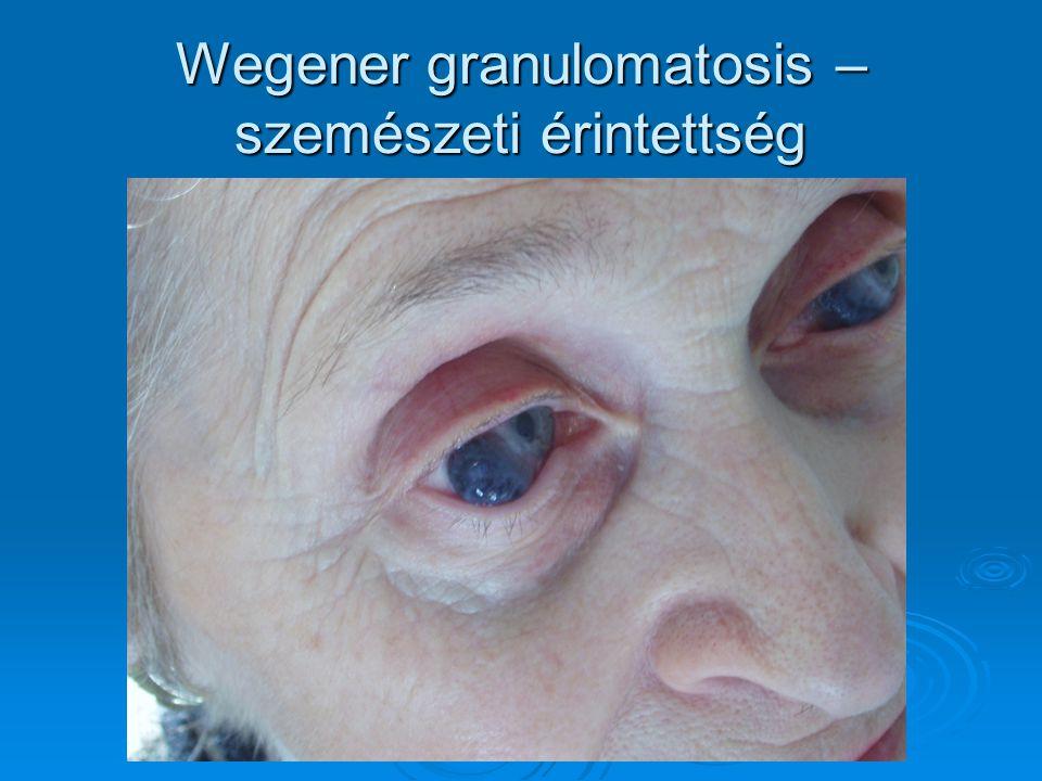 Wegener granulomatosis – szemészeti érintettség