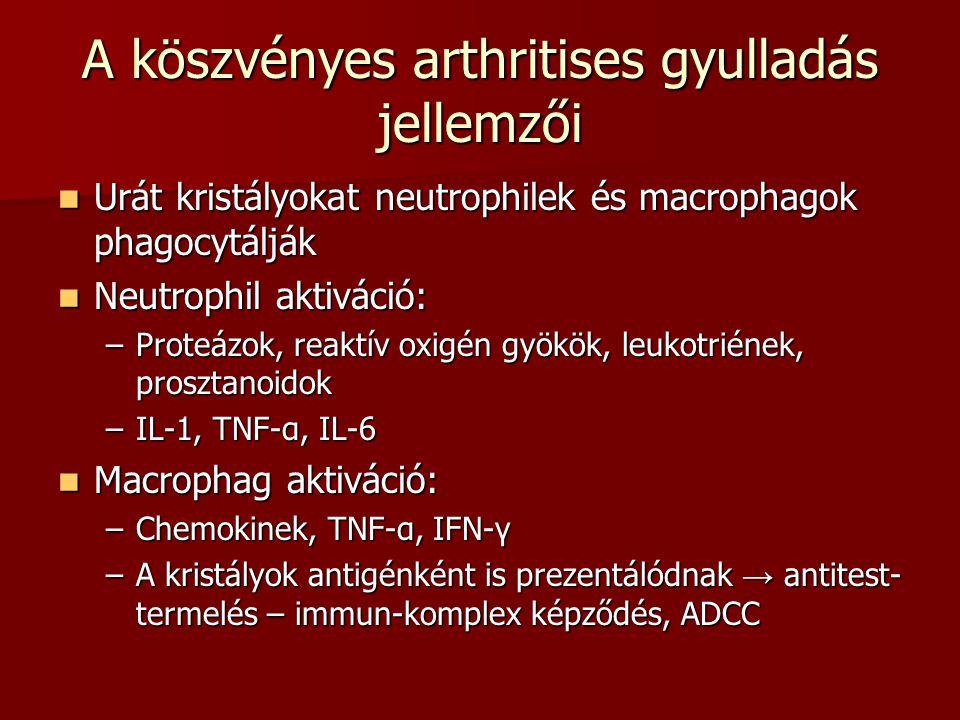 A köszvényes arthritises gyulladás jellemzői