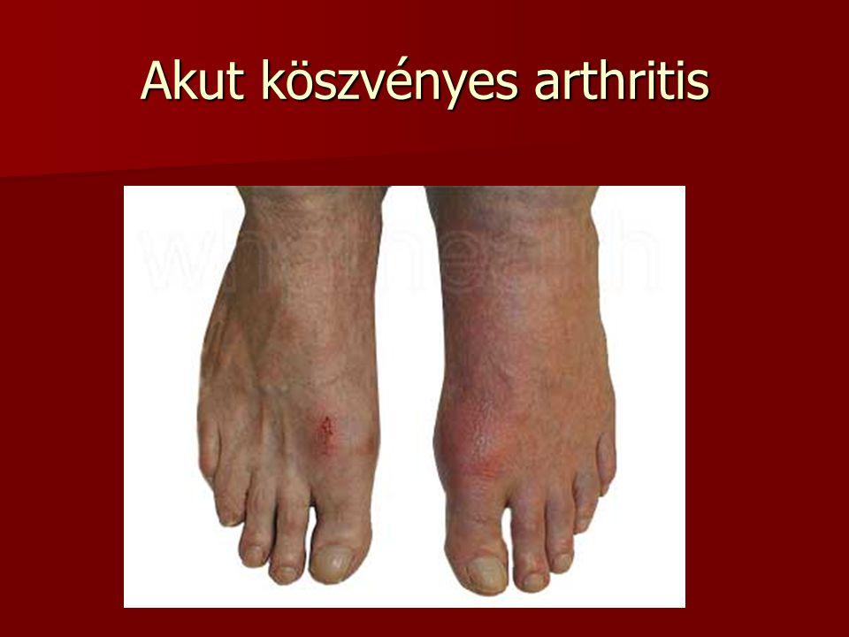 Akut köszvényes arthritis