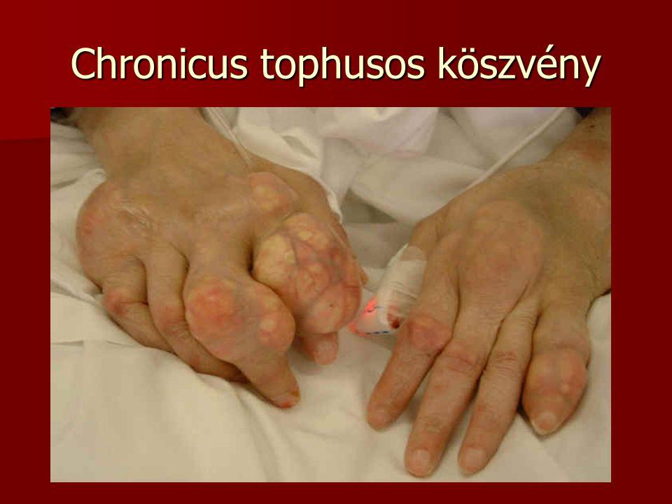 Chronicus tophusos köszvény
