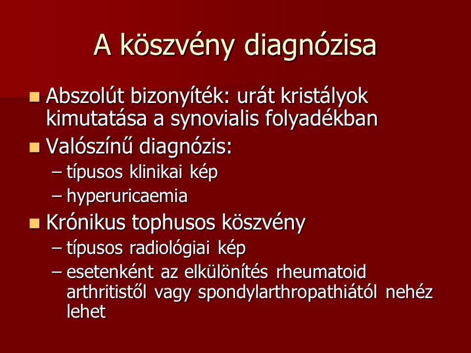 A köszvény diagnózisa Abszolút bizonyíték: urát kristályok kimutatása a synovialis folyadékban. Valószínű diagnózis: