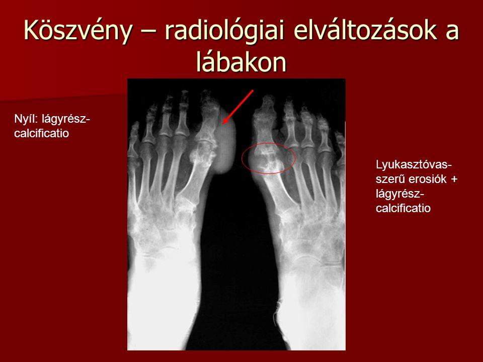 Köszvény – radiológiai elváltozások a lábakon