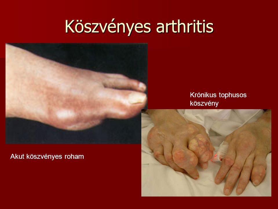 Köszvényes arthritis Krónikus tophusos köszvény Akut köszvényes roham