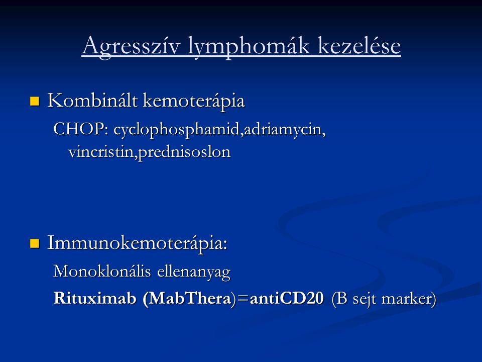 Agresszív lymphomák kezelése