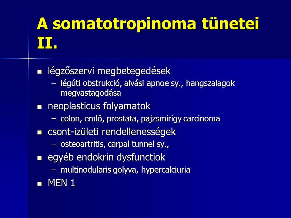 A somatotropinoma tünetei II.