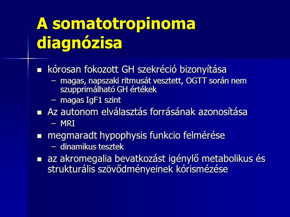 A somatotropinoma diagnózisa
