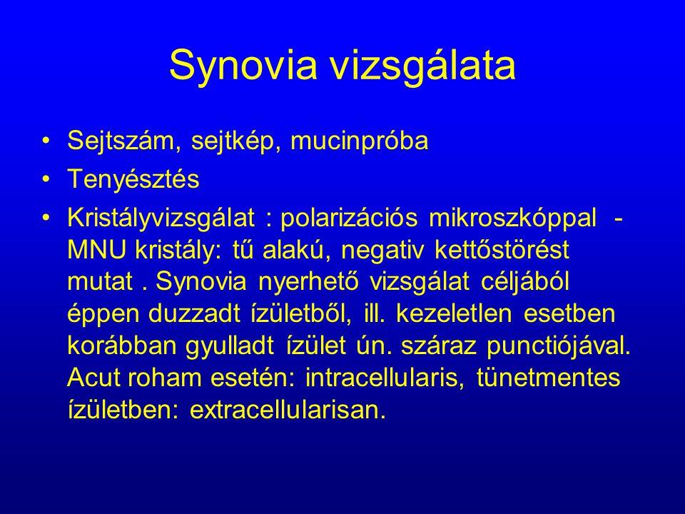 Synovia vizsgálata Sejtszám, sejtkép, mucinpróba Tenyésztés