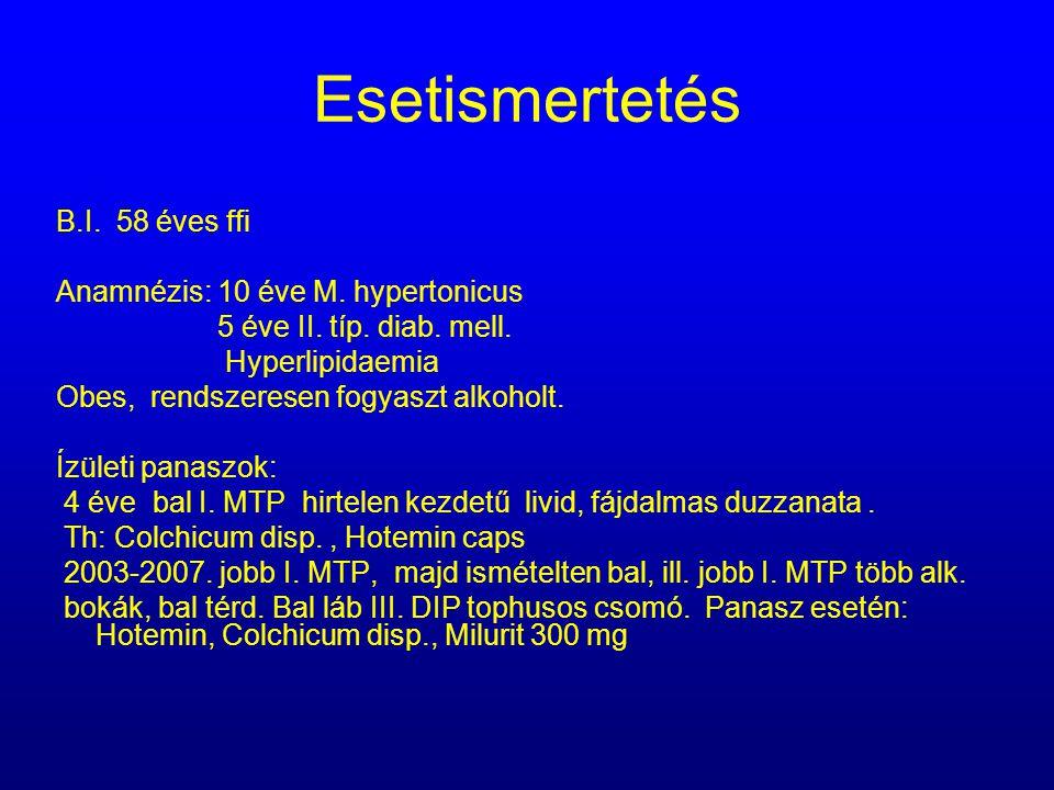 Esetismertetés B.I. 58 éves ffi Anamnézis: 10 éve M. hypertonicus