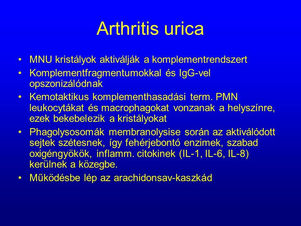 Arthritis urica MNU kristályok aktiválják a komplementrendszert