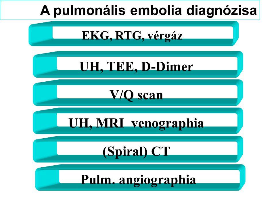 A pulmonális embolia diagnózisa