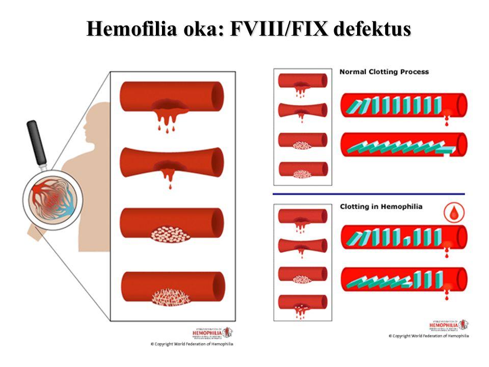 Hemofilia oka: FVIII/FIX defektus