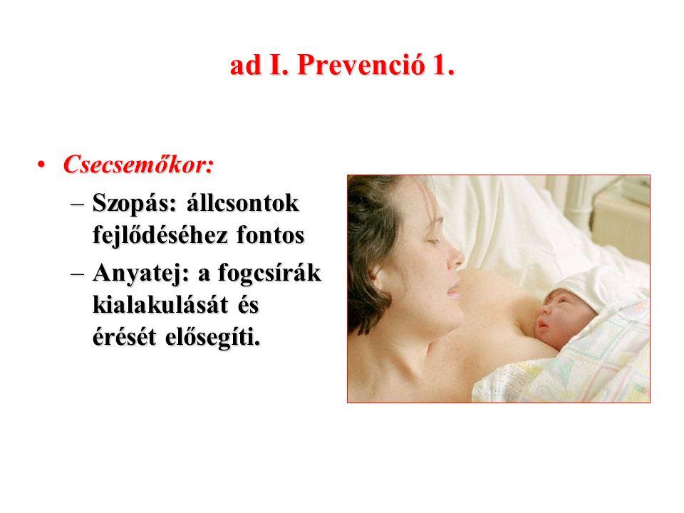 ad I. Prevenció 1. Csecsemőkor: Szopás: állcsontok fejlődéséhez fontos
