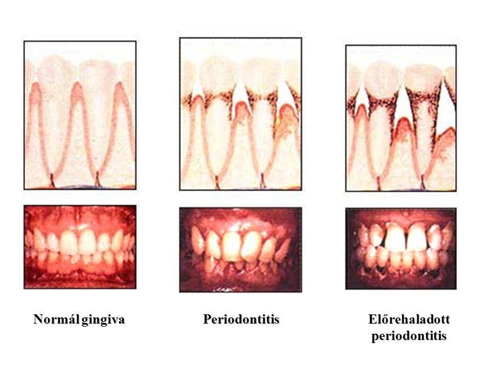 Előrehaladott periodontitis