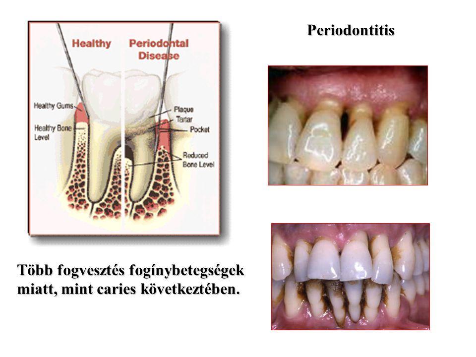 Periodontitis Több fogvesztés fogínybetegségek miatt, mint caries következtében.
