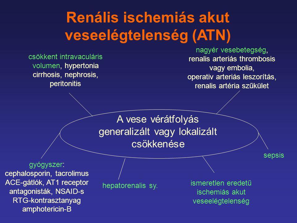 Renális ischemiás akut veseelégtelenség (ATN)