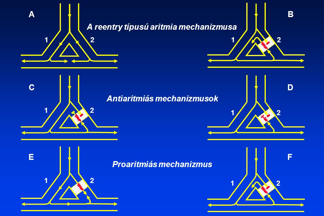 Antiaritmiás mechanizmusok Proaritmiás mechanizmus