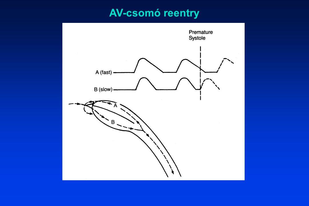 AV-csomó reentry
