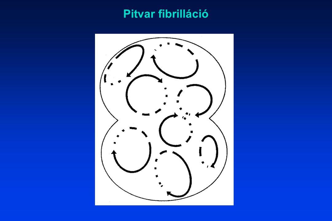 Pitvar fibrilláció