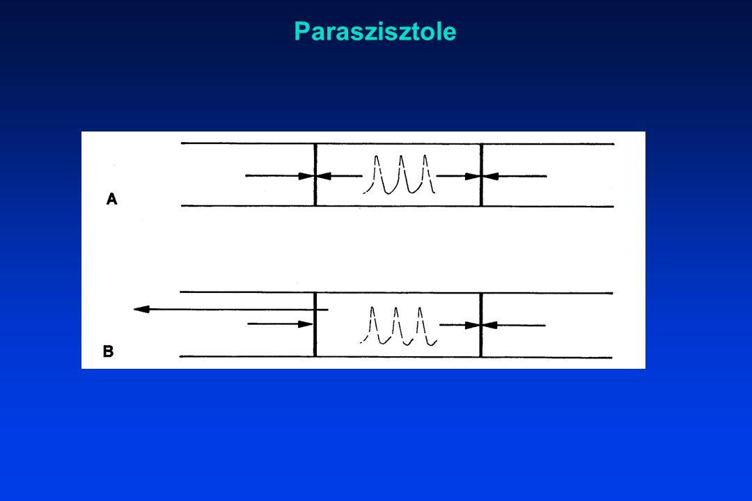 Paraszisztole