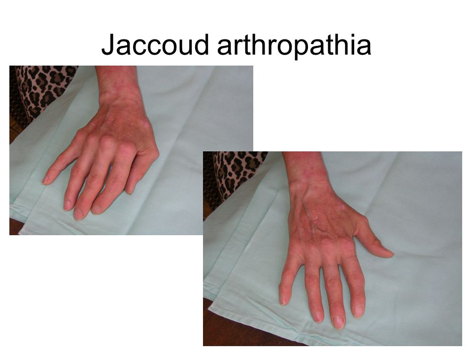 Jaccoud arthropathia